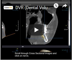 Link to YouTube Video - OnDemand3D Video Manual  DVR (Dental Volume Reformat) Module - Draw Nerve