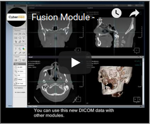 Link to YouTube Video - OnDemand 3D Video Fusion Module - Secondary only / Merged / Subtraction / Maximum
